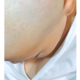 baldprincess
