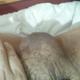 penectomy94