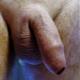 prostate_milker