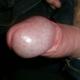 penispumpe nach prostata op