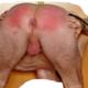 red-butt
