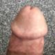 bena8