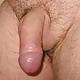 Adicto Al SexoManden MD