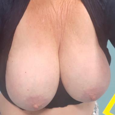 Seks masaż utrecht