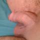Azer75