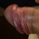 artrood