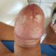 sgommata