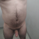 Mrad241